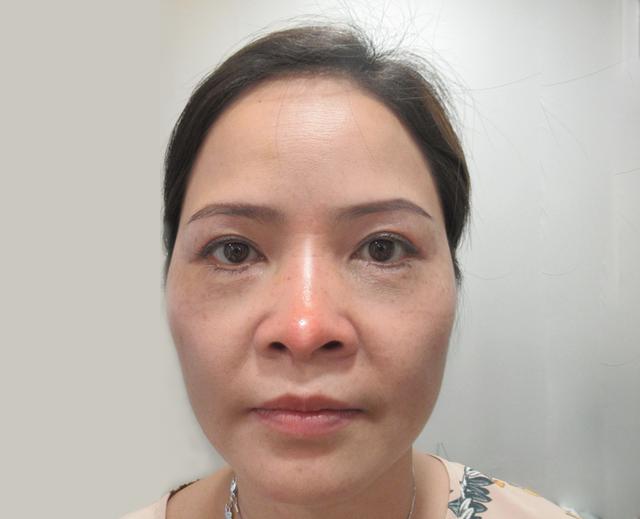 Cứu chữa thành công chiếc mũi biến dạng cho nữ Việt kiều - 2