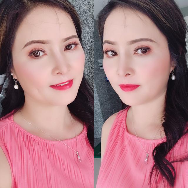 Cứu chữa thành công chiếc mũi biến dạng cho nữ Việt kiều - 5