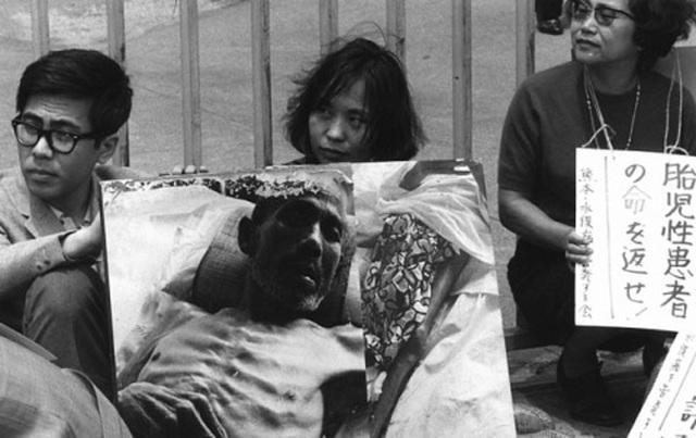 Ký ức chết chóc do thủy ngân ở Nhật Bản và bài học cho Việt Nam - 2