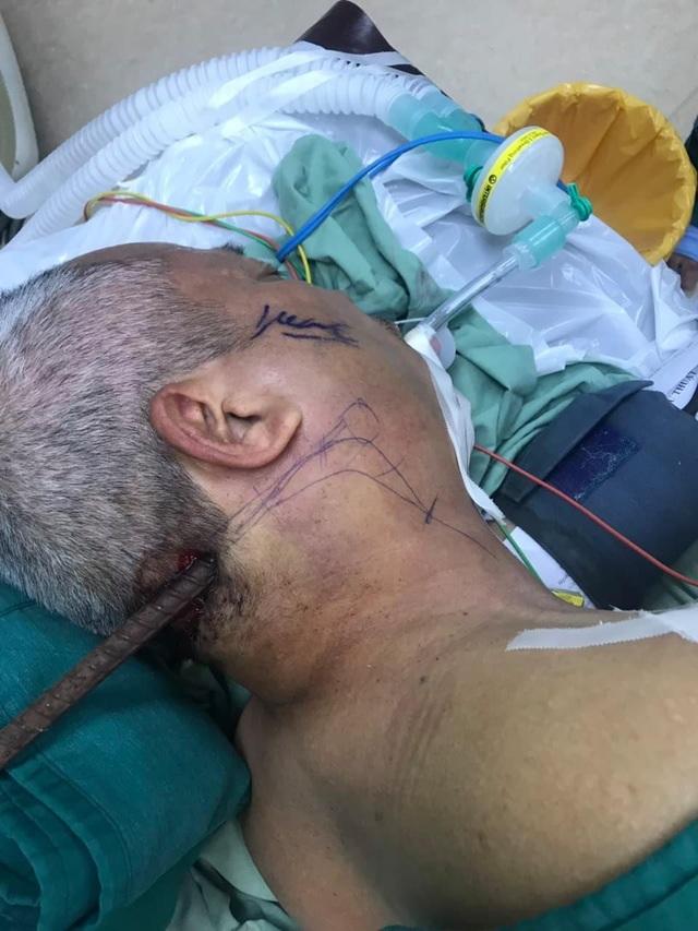 Hãi hùng với hình ảnh nạn nhân bị cây sắt lớn xuyên từ cổ đến xương hàm - 1