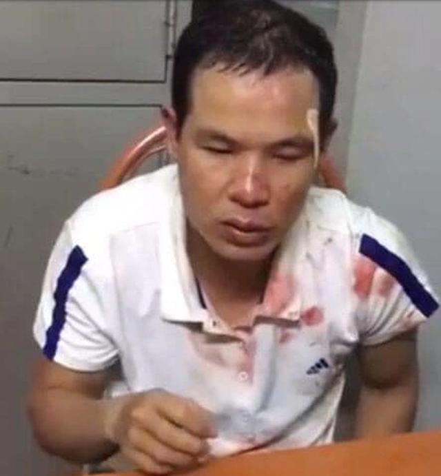 Gã đàn ông nghi định giở trò đồi bại với bé gái sau khi trộm bất thành - 3
