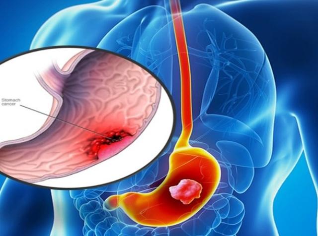 Làm gì để ngừa căn bệnh chết người ung thư dạ dày? - 1