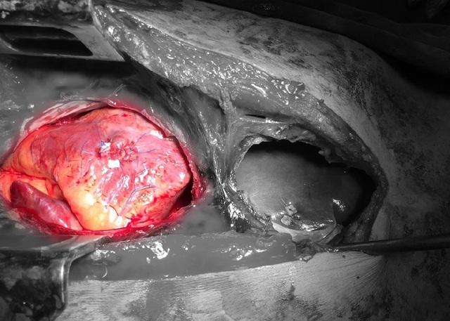 Cưa xương ức cứu bệnh nhân bị đâm thấu tim, xuyên gan - 1