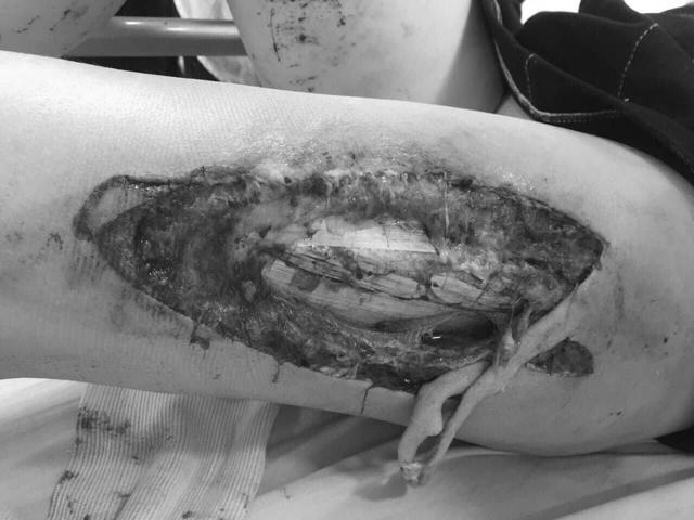 Nữ cổ động viên dính pháo sáng tại sân Hàng Đẫy tổn thương sâu, lộ xương đùi - 1