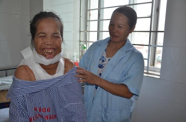 """Người đàn bà mang hàm răng """"kỳ dị"""" đã có """"khuôn mặt mới"""" sau ca phẫu thuật - 8"""