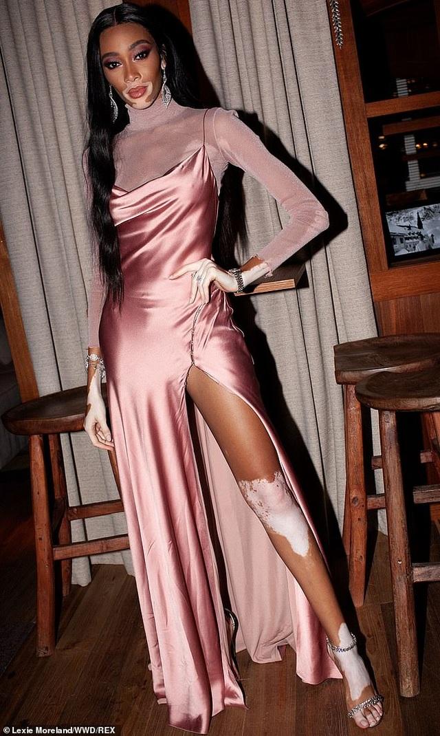 Kim Kardashian lộ chân ngắn bên siêu mẫu Winnie Harlow - 4