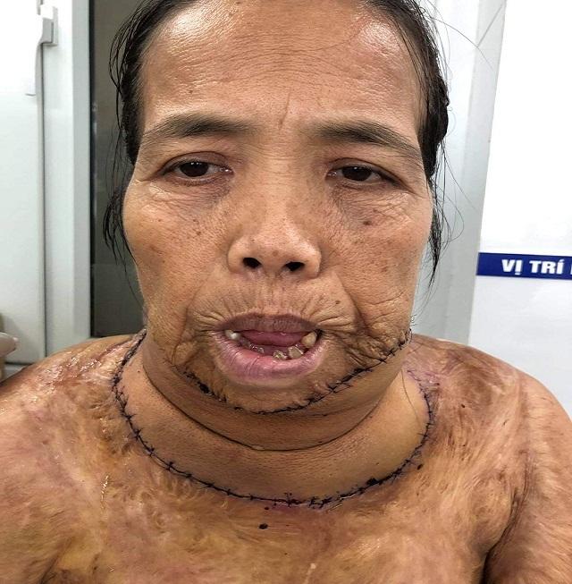 """Người đàn bà mang hàm răng """"kỳ dị"""" đã có """"khuôn mặt mới"""" sau ca phẫu thuật - 5"""