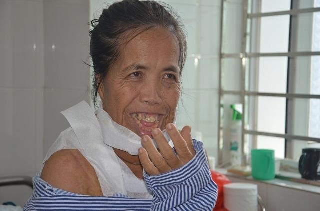 """Người đàn bà mang hàm răng """"kỳ dị"""" đã có """"khuôn mặt mới"""" sau ca phẫu thuật - 1"""