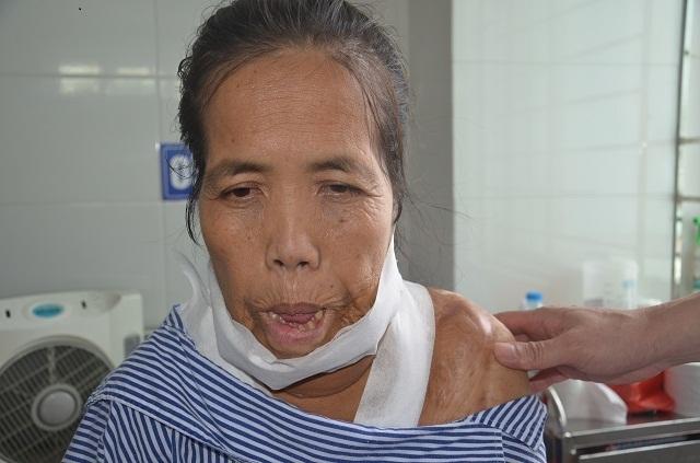 """Người đàn bà mang hàm răng """"kỳ dị"""" đã có """"khuôn mặt mới"""" sau ca phẫu thuật - 4"""