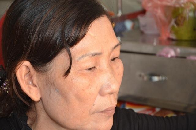 Người mẹ nghèo bất lực nhìn con gái chia quả thận để cứu em - 4
