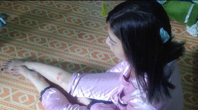 Cô gái bị 2 tên cướp giật túi xách ngã đập đầu trong hẻm ở Sài Gòn - 2