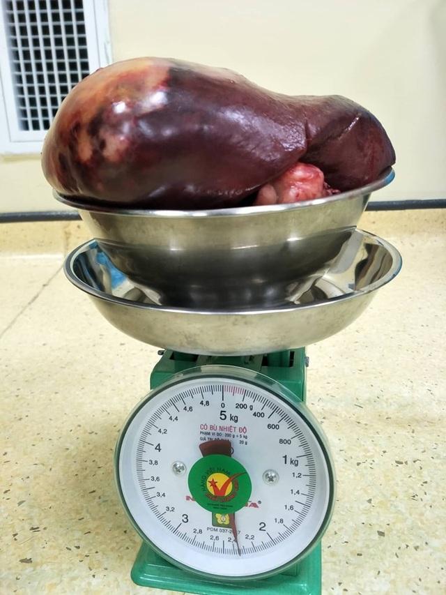 Bác sĩ rùng mình cắt khối u khổng lồ nặng gấp 11 lần trọng lượng của lá lách - 1