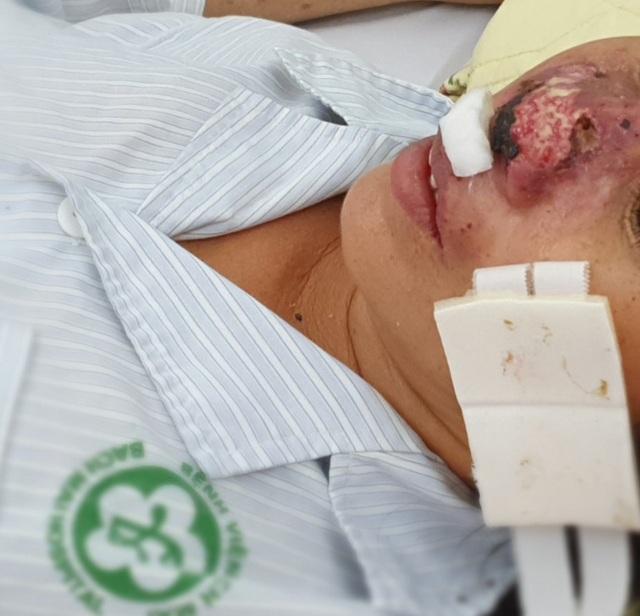 Bệnh nhân bị vi khuẩn Whitmore ăn mòn mũi điều trị  liên tục hơn 20 ngày - 1