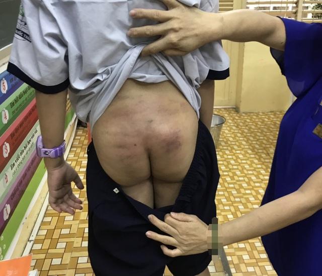 TPHCM: Nghi vấn bé trai bị bạo hành kéo dài khi ở cùng bố, mẹ kế  - 1