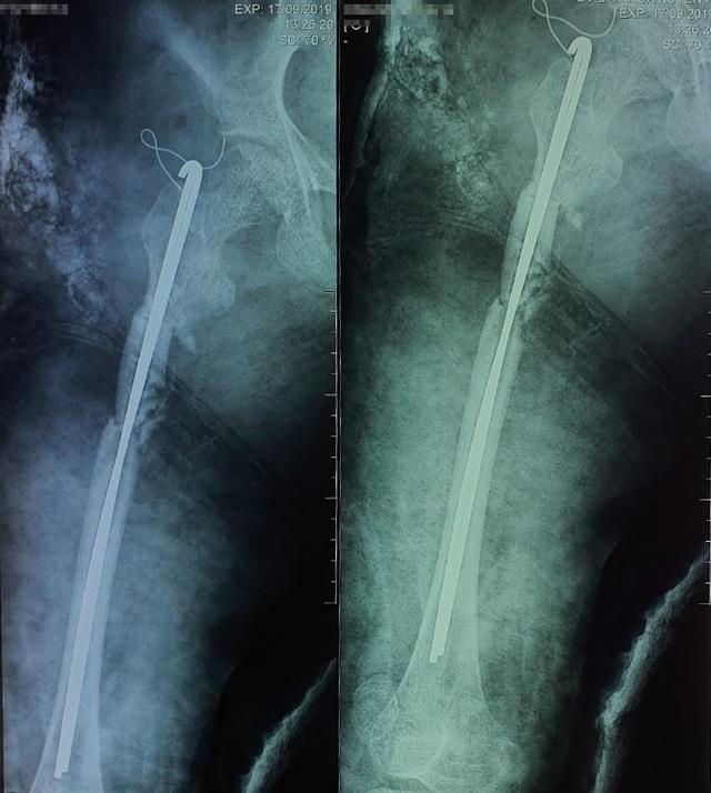 Xếp lại những mảnh xương thủy tinh cho cô bé 14 tuổi - 3