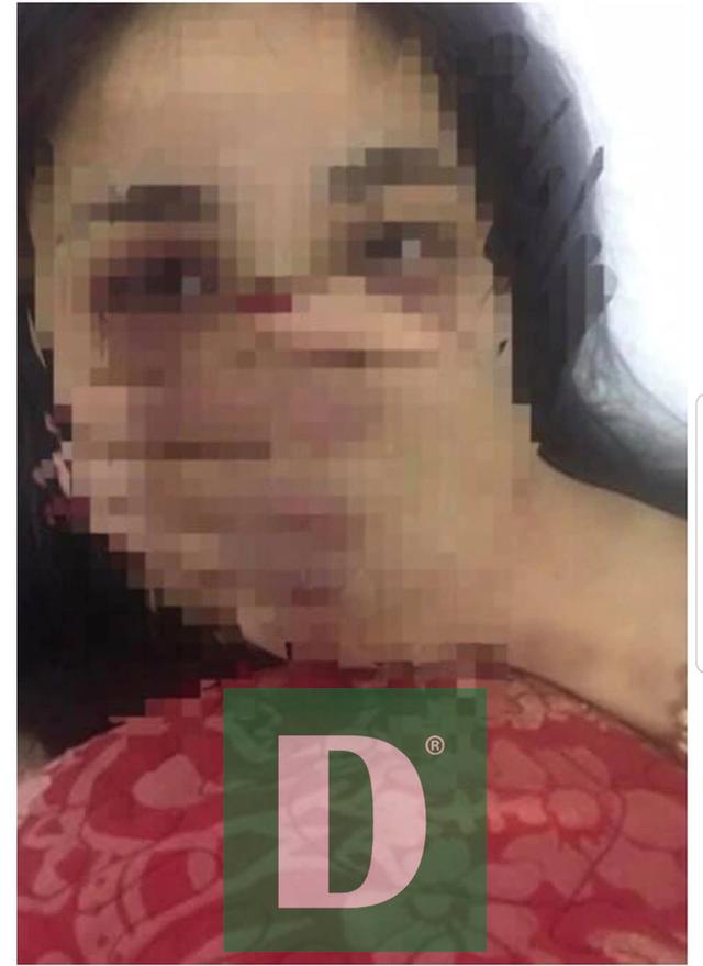 Khởi tố, bắt tạm giam bác sĩ gạ tình, đánh đập nữ điều dưỡng - 7