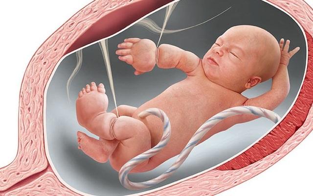 Bệnh viện Phụ sản Hà Nội mổ miễn phí cho bệnh nhân có hội chứng truyền máu song thai, hội chứng dải xơ buồng ối - 2