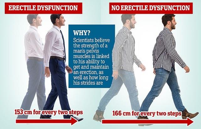 Nam giới có bước chân ngắn dễ bị rối loạn cương dương - 1