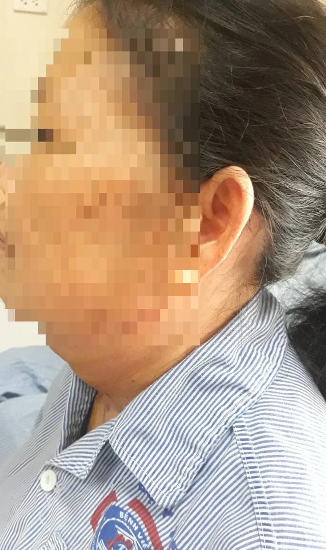 Người phụ nữ được giải thoát sau 20 năm dùng khăn, tay đỡ khối u treo lủng lẳng trước cổ - 2