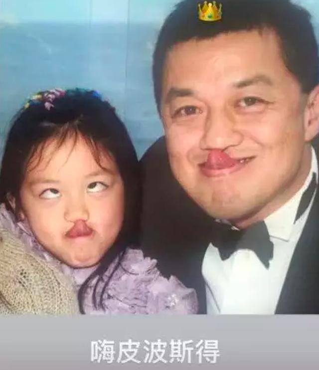 Tình cảm của người cha vĩ đại Lý Á Bằng dành cho cô con gái bị dị tật môi bẩm sinh - 3