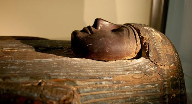 Người cổ đại cũng mắc bệnh xơ vữa động mạch - 1