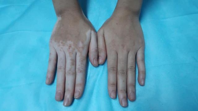 Kỳ lạ cô gái bỗng nhiên đổi màu tay chân vì chữa ra mồ hôi bằng lá trầu không - 1