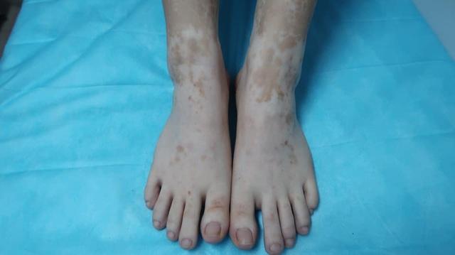 Kỳ lạ cô gái bỗng nhiên đổi màu tay chân vì chữa ra mồ hôi bằng lá trầu không - 2