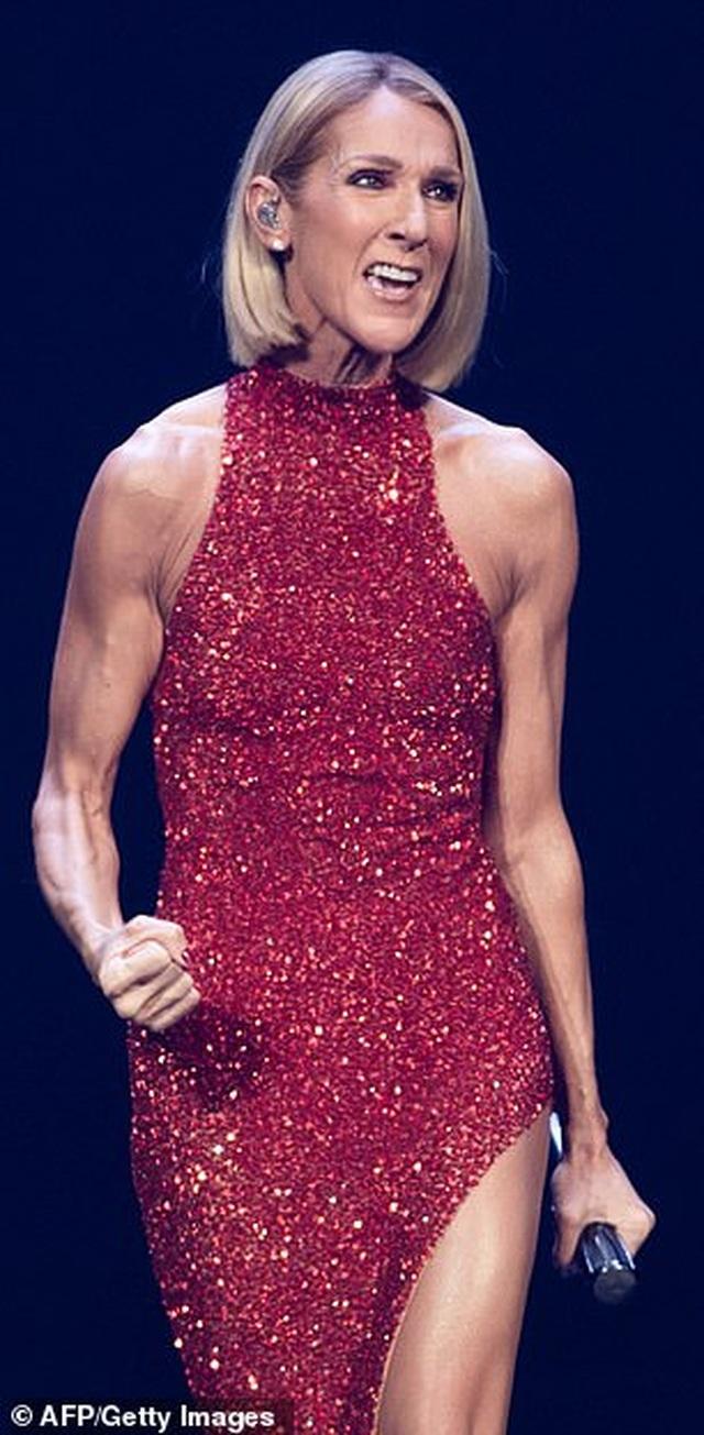 Celine Dion lên tiếng khi bị chỉ trích quá gày - 5
