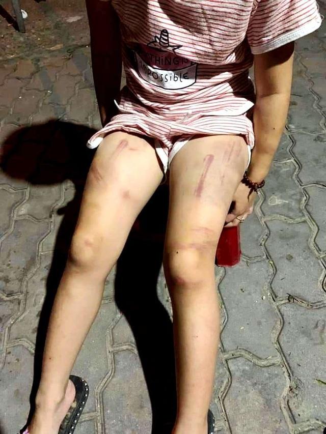 Cháu bé 6 tuổi ở Quảng Nam bị hành hạ