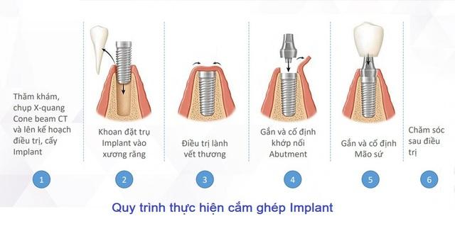"""Loại trụ Implant nào tốt, """"tuổi thọ"""" được bao lâu? - Ảnh 4."""