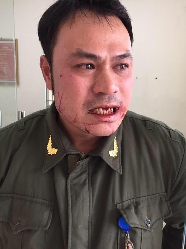 Nhân viên an ninh sân bay Nội Bài bị đối tượng cò mồi taxi dù hành hung - Ảnh 2.