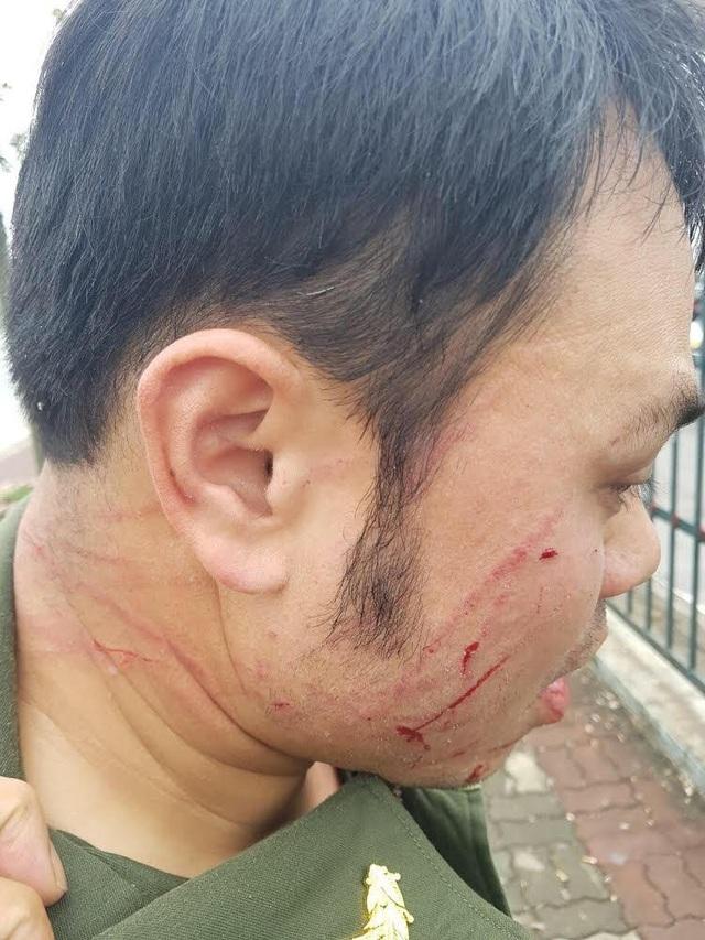 Nhân viên an ninh sân bay Nội Bài bị đối tượng cò mồi taxi dù hành hung - Ảnh 1.