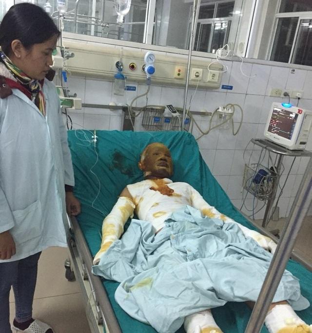 Hà Tĩnh: Cấp thẻ BHYT cho một học sinh bị bỏng nặng - Ảnh 1.
