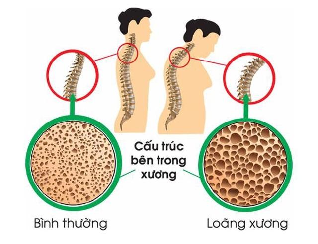 3 dấu hiệu cảnh báo cơ thể bạn đang thiếu canxi trầm trọng | Báo Dân trí