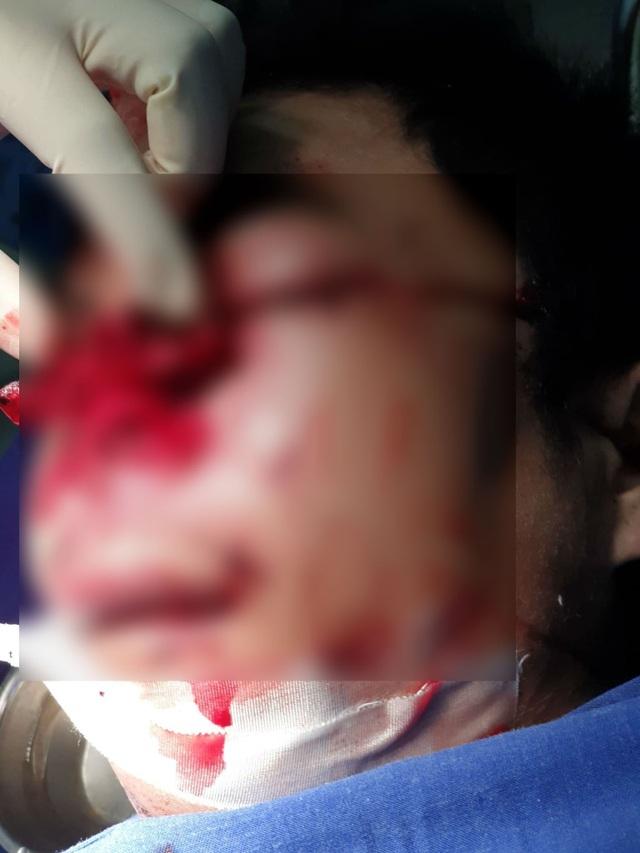 Nổ bình ga mini khi nấu cơm, bệnh nhân vỡ nhãn cầu mắt, dập nát mũi - Ảnh 1.