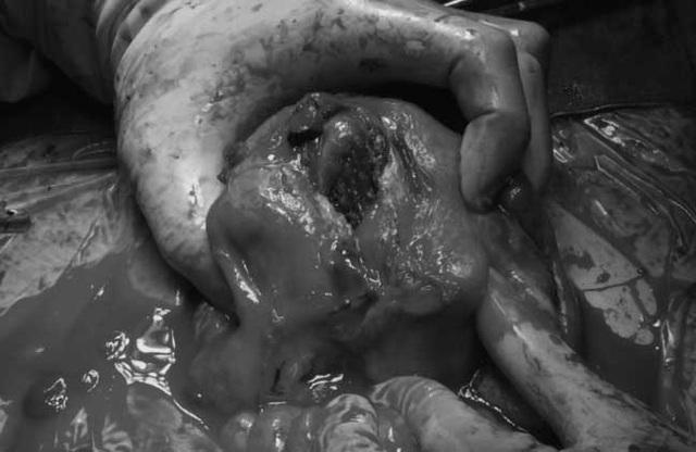 Cứu sống sản phụ mất 3 lít máu do vỡ tử cung sau sinh thường - Ảnh 1.
