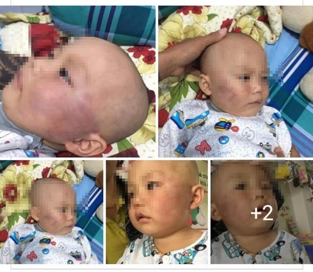Hình ảnh bé Huy hôm bị cô bảo mẫu đánh.