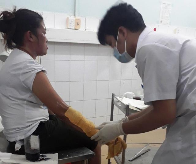 Nhân viên y tế Bệnh viện Đa khoa Phú Quốc chăm sóc cho một thực khách bị bỏng.