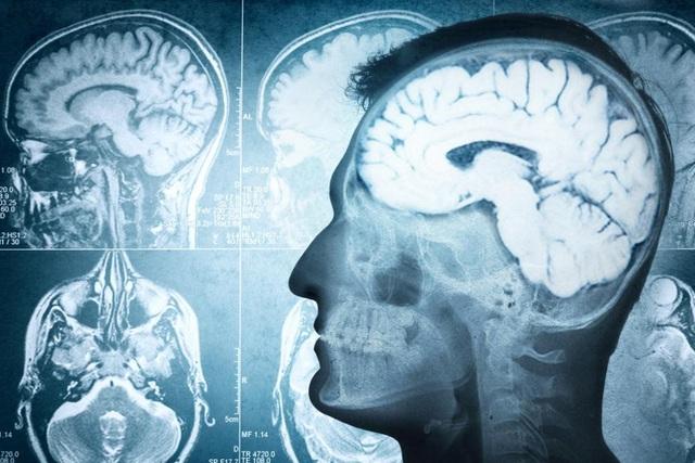 Tiêu diệt tế bào zombie mở ra triển vọng chữa trị chứng lo âu  - Ảnh 1.