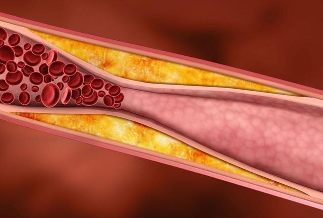 Nguy cơ nhồi máu cơ tim do chủ quan với máu nhiễm mỡ - Ảnh 2.