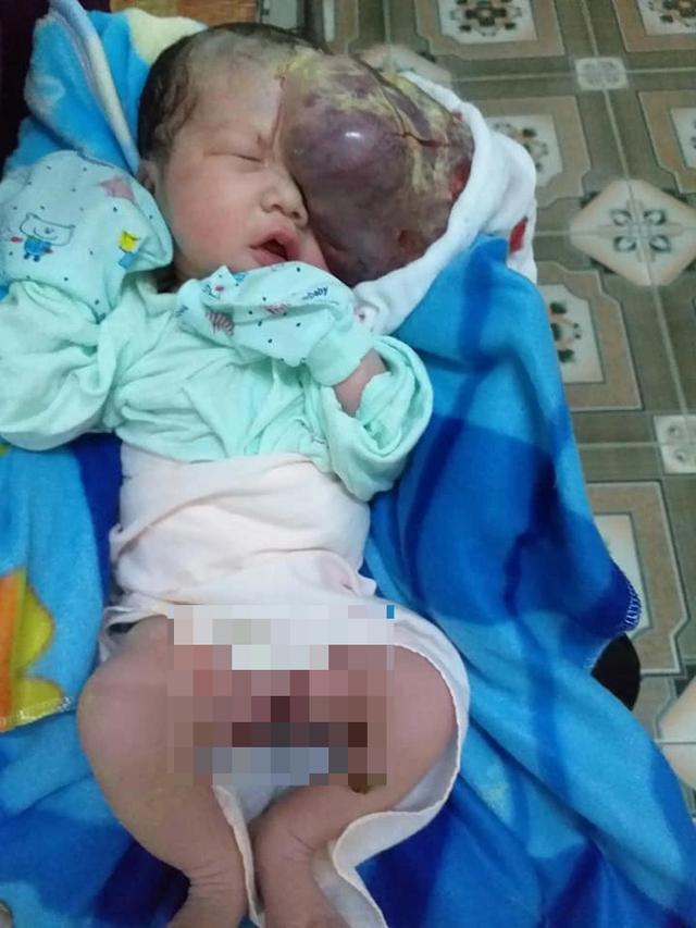 Mẹ chết ngất nhìn con chào đời mang u khủng dị thường trên mặt! - 4