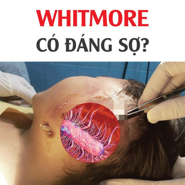 Bác sỹ đầu ngành chia sẻ cách ứng phó và dự phòng nỗi khiếp sợ mang tên Withmore - 1