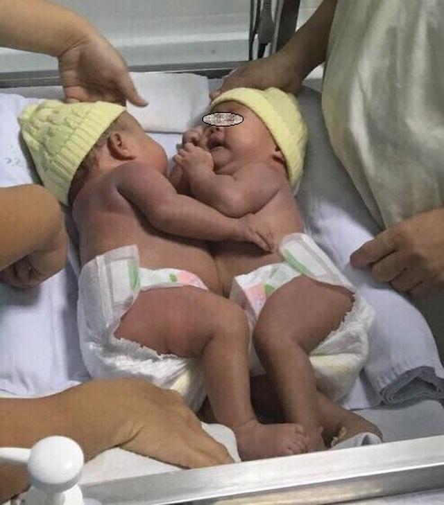 Tách cặp song sinh dính liền nhau vùng bụng - 4