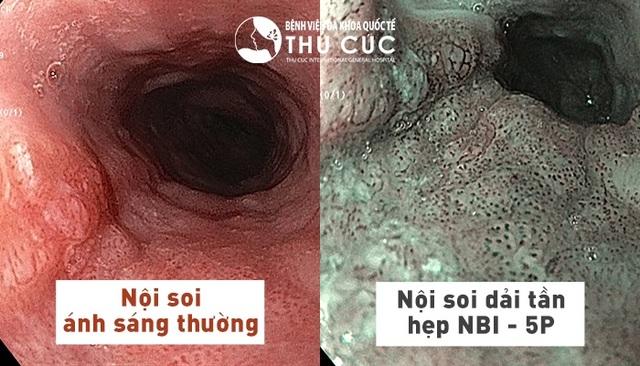 Phát hiện sớm ung thư đường tiêu hóa nhờ nội soi công nghệ NBI 5P - 1
