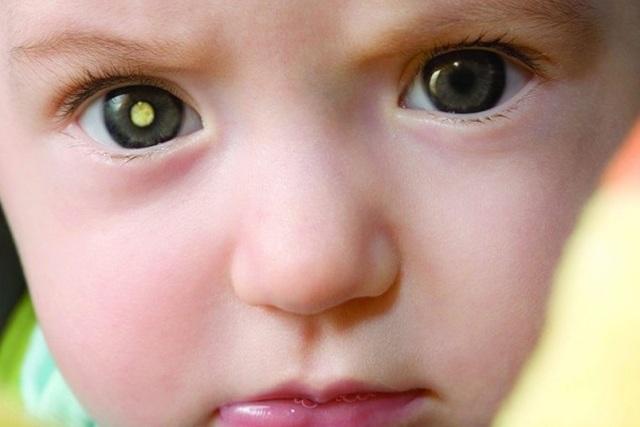 Phát hiện dấu hiệu ung thư mắt từ những bức hình chụp hàng ngày của trẻ - 1
