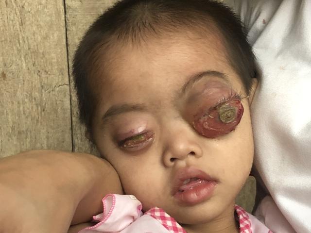 Bé gái có cặp mắt như quả bóng muốn nổ tung cầu cứu...! - 5