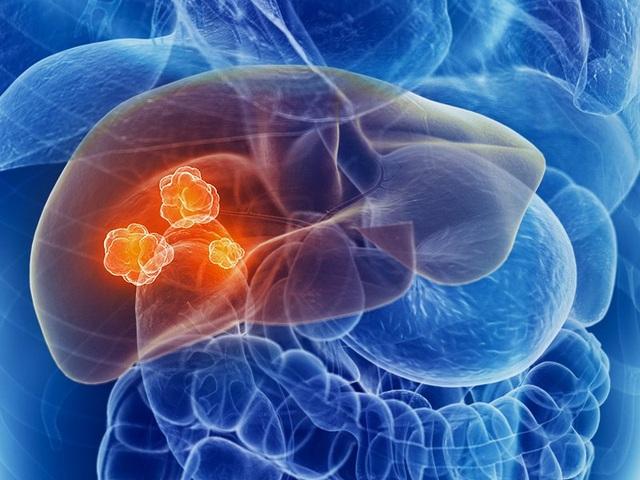 Phát hiện sớm ung thư gan bằng cách nào? - 1
