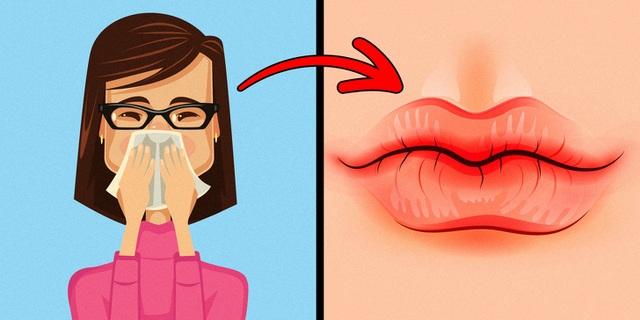 8 dấu hiệu cảnh báo sức khỏe từ đôi môi - 2