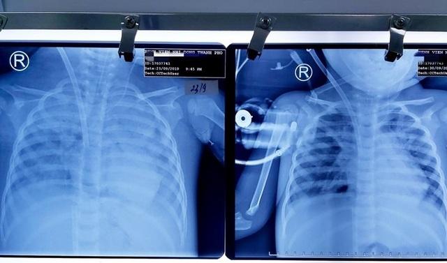 Bé 3 tuổi tê liệt chức năng phổi vì suy hô hấp được cứu sống kỳ diệu - 3