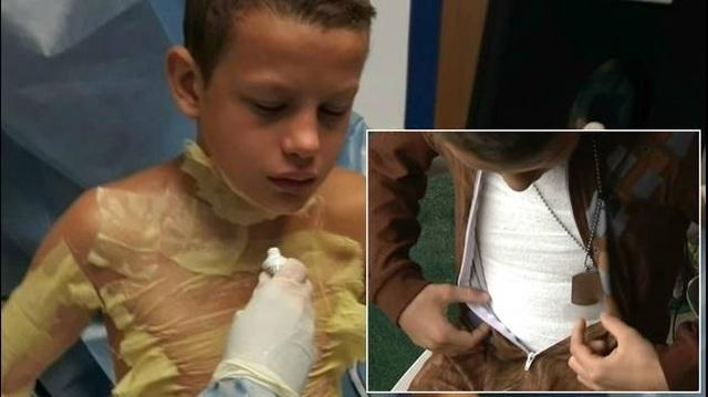 """Cậu bé 12 tuổi bị bỏng nặng khi chơi trò """"thử thách lửa"""" - 1"""